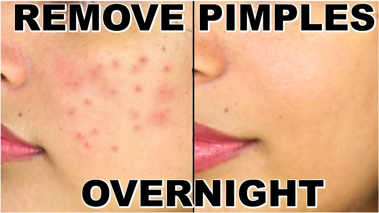 how to make your pimples go away overnight