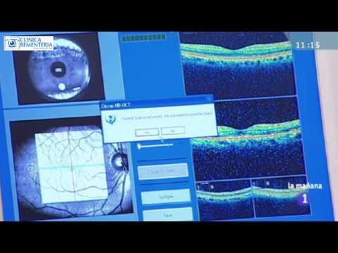 OCT Macular y Nervio Óptico
