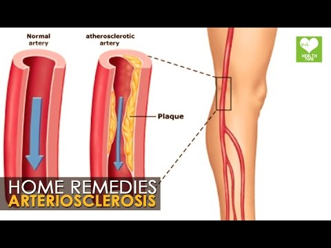 artery and arteriosclerosis treatment Information on arteriosclerosis caused by clogged arteries learn about blood circulation and clogging and hardening of the arteries  the treatment of .
