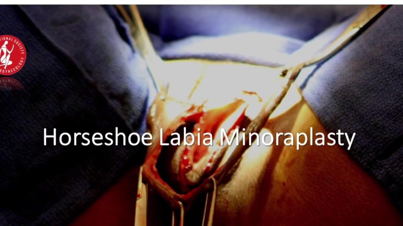 Tecnica Gaviria Labioplastia Reducción