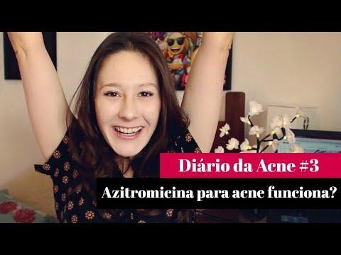 Antibiótico Azitromicina para ACNE - por Letícia Menezes