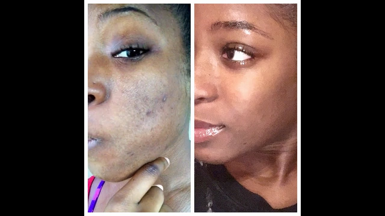 Remove Dark Spots Acne In 1 Week Aztec Clay Wash Routine Youtube