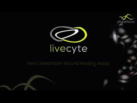 Next Generation Wound Healing Assay
