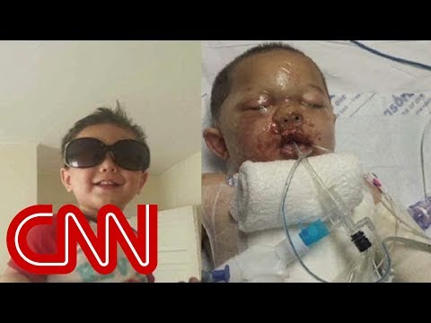 Mom: SWAT team blew a hole in my toddler son thumbnail