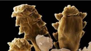 Viviendo en nuestro rostro: Demodex folliculorum.