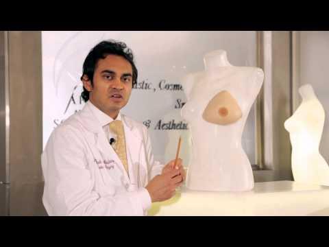 الطرق الحديثة لتصغير الثدي (الصدر) وشده