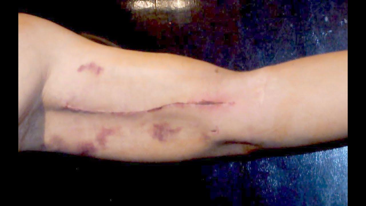 After Surgery Basilic Vein Transposition Av Fistula Youtube