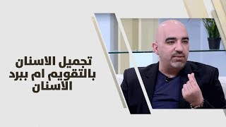 د. خالد عبيدات - تجميل الاسنان بالتقويم ام ببرد الاسنان
