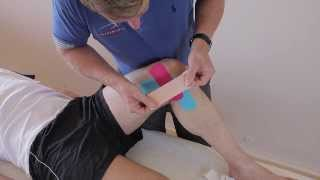 How Treat Medial Knee Pain Mcl Sprain Medial Meniscus Kinesiology Tape