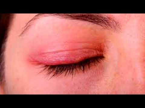 Как избавиться от воспаления глаз