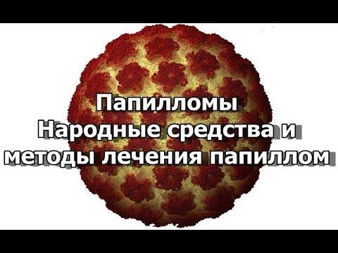 Папилломы - Народные средства и методы лечения папиллом - YouTube