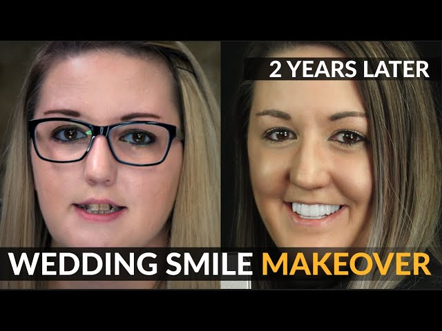Wedding Smile Makeover | 2 Year Follow Up - Cosmetic Dental Veneers | Brighter Image Lab NO Dentist