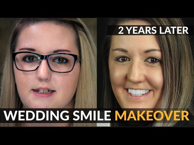 Hochzeit Lächeln Makeover | 2 Jahre Follow-up - Kosmetische Dentalveneers | Brighter Image Lab KEIN Zahnarzt