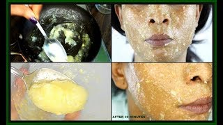 LEMON HONEY FACE MASK FOR SCARS, ACNE AND DARK SPOTS | BRIGHTEN AND HYDRATES THE SKIN |Khichi Beauty
