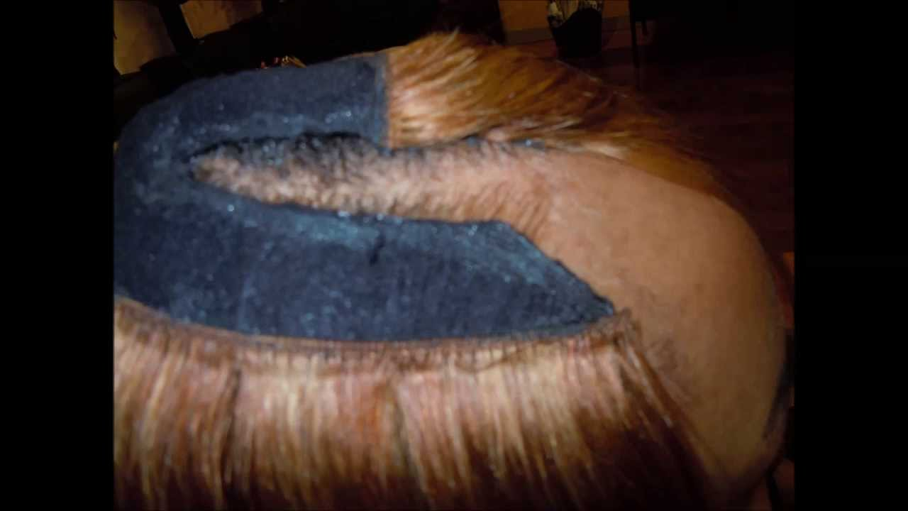 Extreme Overlay Illusion Hairline And Illusion Part With
