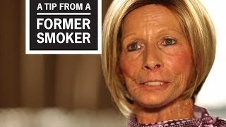 CDC: Tips From Former Smokers — Terrie: Little Things I Miss