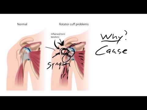 What's The Secret To Fixing Shoulder Tendonitis?