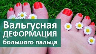 видео Ортопедическая обувь для детей и женщин при вальгусной деформации и установке стоп