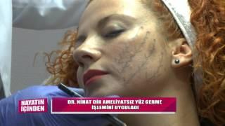 DR.NİHAT DİK - YÜZÜ ASKIYA ALMA - TV360 HAYATIN İÇİNDEN Resimi