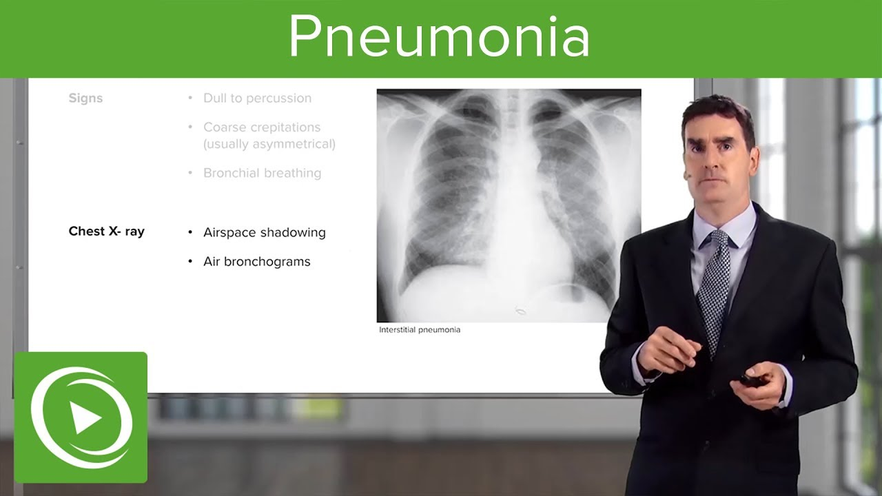 Download Pneumonia: Types, Classification, Symptoms & Management – Respiratory Medicine   Lecturio