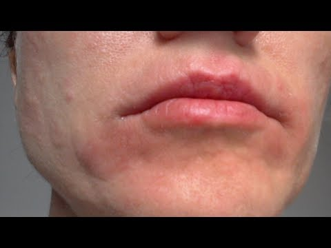 how to get rid of eczema on face at home