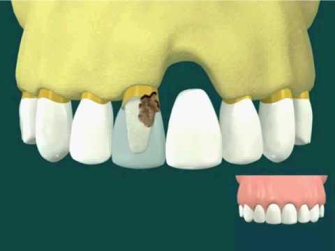 Kết quả hình ảnh cho Implant và cầu răng khác nhau như thế nào?