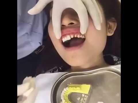 dentiste en asie part 2 pose de couronne en facettes c ramiques 2016 youtube. Black Bedroom Furniture Sets. Home Design Ideas