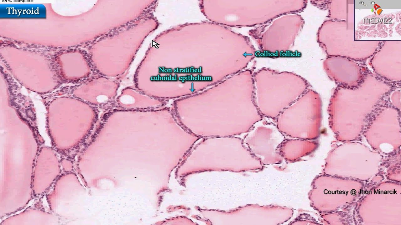 Histology Of Thyroid Gland Shotgun Histology Youtube