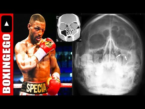 (LATEST) KELL BROOK EYE INJURY UPDATE LEFT ORBITAL INJURY FROM SPENCE JR  SURGERY RQD JUNE16