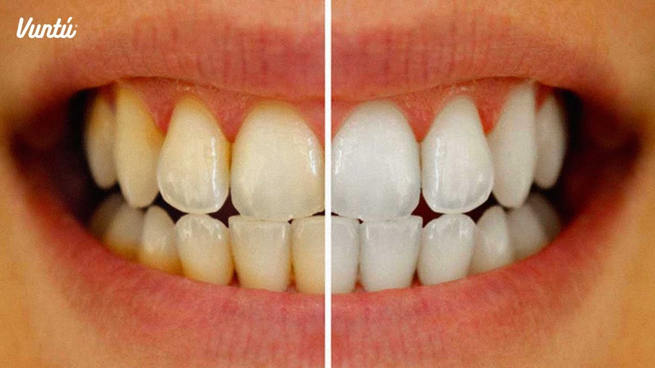 Como tener los dientes blancos en casa
