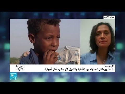 اليونيسف: 16 مليون طفل ضحايا سوء التغذية بالشرق الأوسط وشمال أفريقيا  - 15:54-2019 / 10 / 22