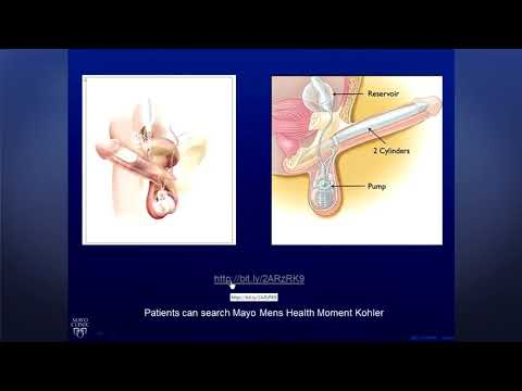 Erectile Dysfunction Solutions after Prostate Cancer Treatment