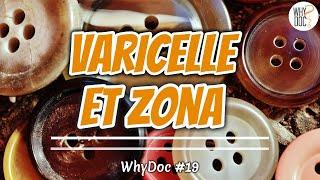 Varicelle et Zona - WhyDoc #19