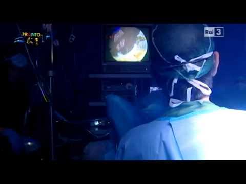 Intervento Adenoma prostatico - Thulium Laser - Prof.Giovanni Muto
