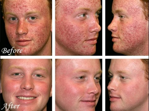 hqdefault - Raw Food Cures Acne