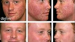 hqdefault - Raw Diet Cure Acne
