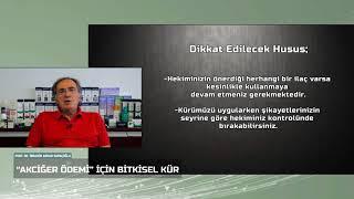 Akciğer Ödemi Şikayetine Karşı Prof Saraçoğlu Önerileri!