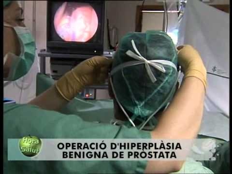 cirugía de próstata con hiperplasia benigna