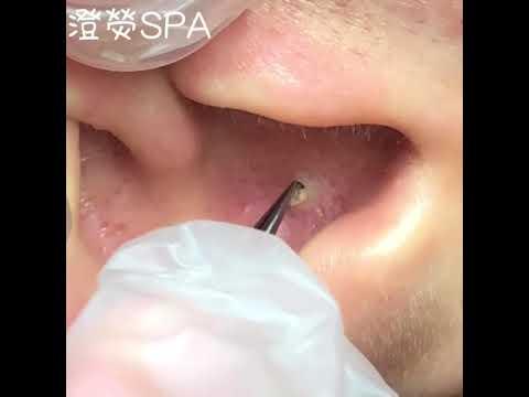 Прыщ в ухе болит что делать