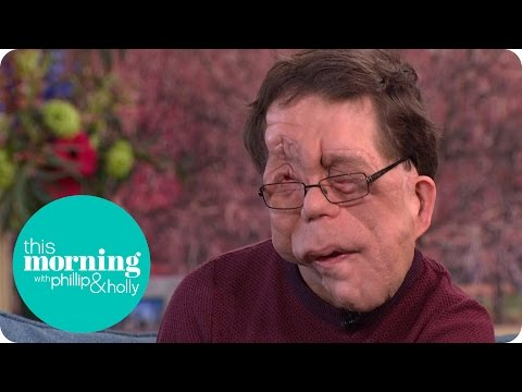 Adam Pearson Explores Freak Shows for New Documentary | This Morning