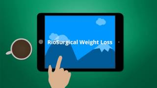 How to choose a surgical weight loss option in San Antonio