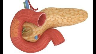Заболевания, воспаление и лечение поджелудочной железы