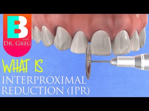 Interproximal Reduction (IPR) Stripping Of Teeth For Braces Or Invisalign