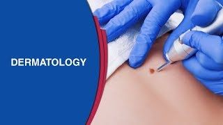 Skin Graft | Transplantation of Skin | Graft Surgery | Skin Cancers | Manipal Hospitals