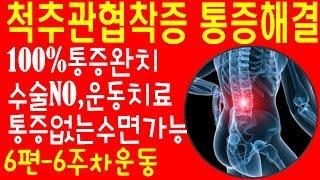 척추관협착증 하지방사통완치운동 통증없는수면가능 100%통증개선 spinal stenosis