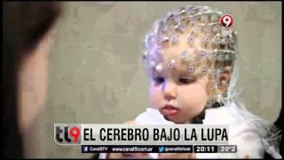 Diagnósticos del siglo XXI: el cerebro bajo la lupa