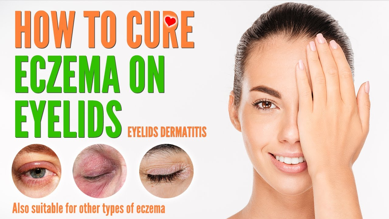 How to cure eczema on eyelids | Eyelids Dermatitis treatment and natural home remedies