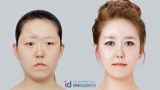 Download lagu Let Me In Korea Plastic Surgery  | Facial Bone Surgery, Forehead Augmentation