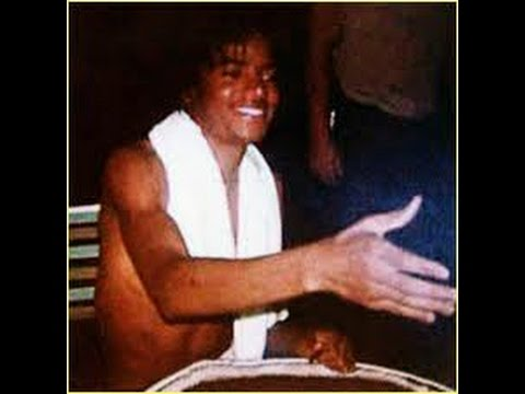 The Truth: Michael Jackson Vitiligo