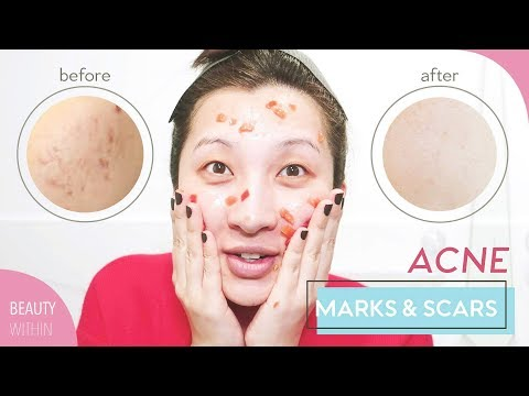 hqdefault - Recipes For Home Remedies Acne